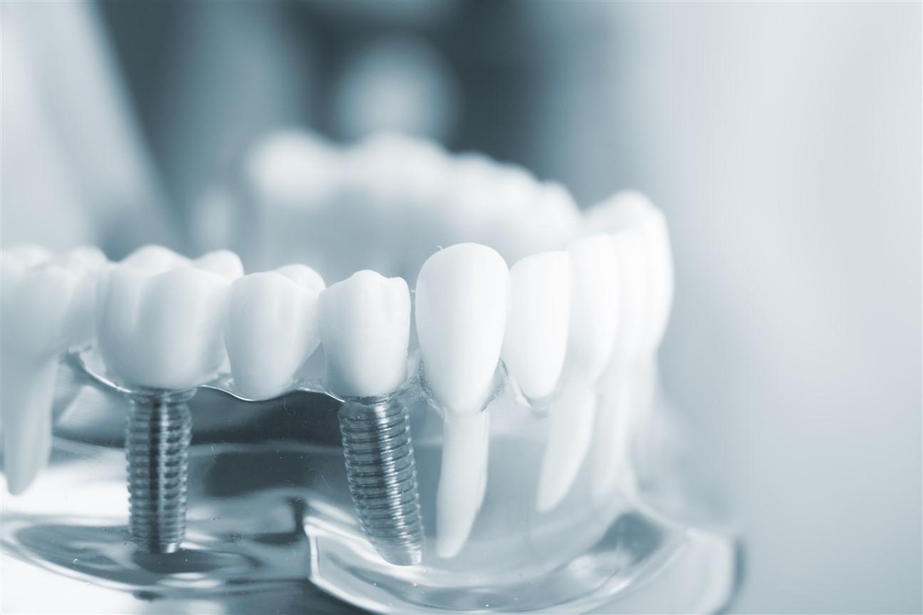 Dental Veneers in Edmonton - Bonnie Doon Dental Associates