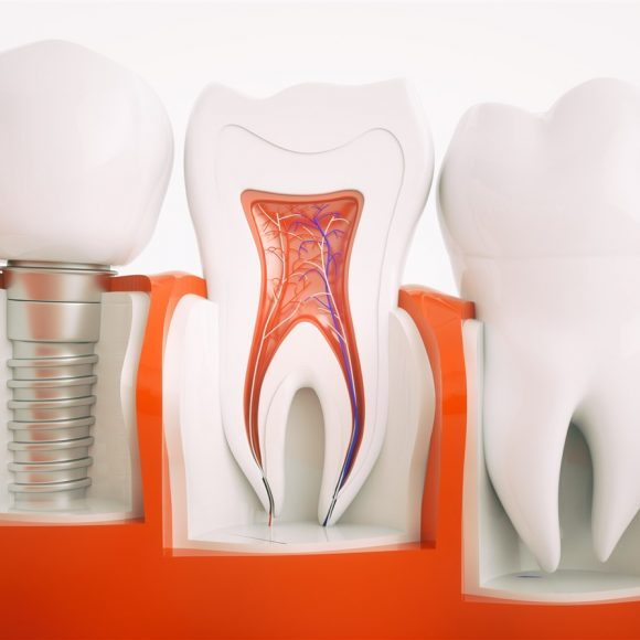 Tips For Dental Implants