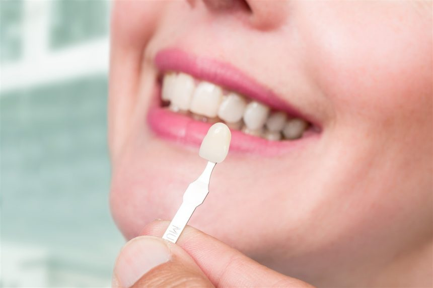 Are Veneers  Right for You?