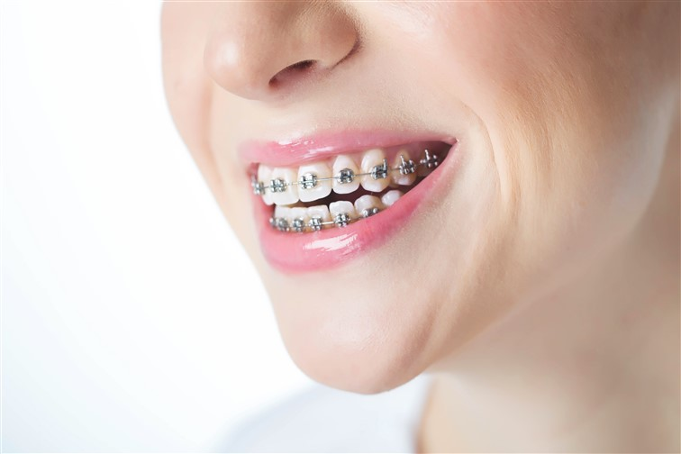 Braces – Not Just For Kids!
