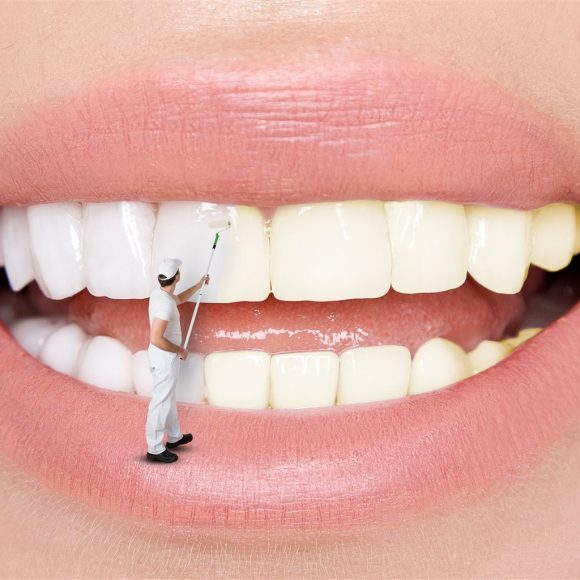 Understanding Teeth Whitening