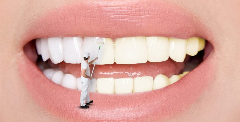 Understanding Teeth Whitening